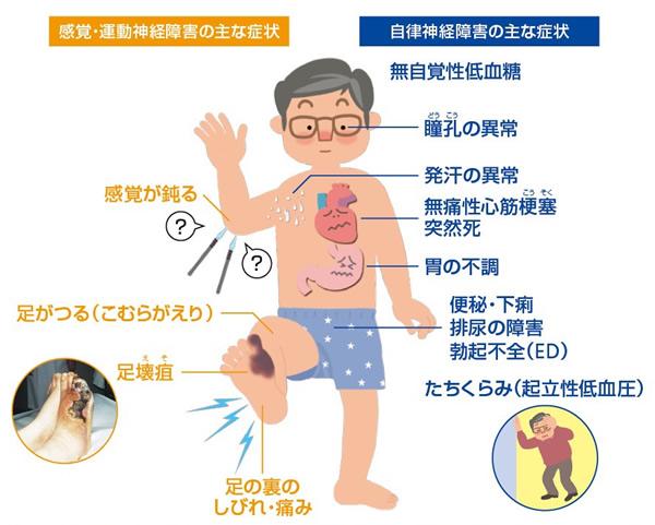 痛い 体 が チクチク ビリビリ、ジンジン、チクチク「神経障害性疼痛」